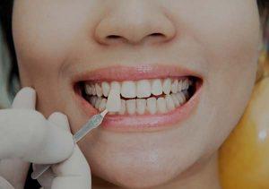 Calgary Dentist, Veneers